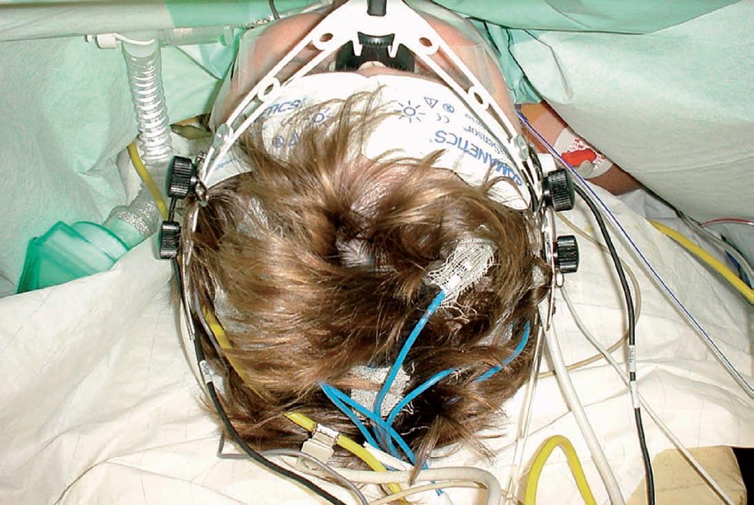 EEG-elektroden