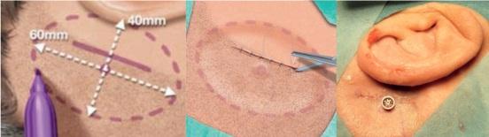 """Bij de Nijmeegse """"linear incision technique"""" plaatst de chirurg de implantaatschroef in  het bot achter de oorschelp, in de haarlijn."""