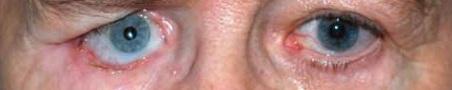 Bij deze patiënt hangt het onderooglid rechts door, waardoor de oogprothese dreigt uit te vallen.