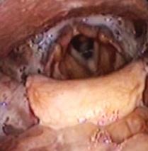 FEES biedt een zicht op het bolustraject  tijdens het slikken.
