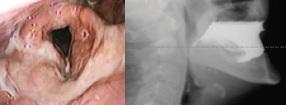 Links: endoscopisch beeld tijdens het slikken  Rechts: radiologische slikvideo