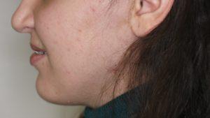 Figuur 8: Foto 3 weken na de operatie