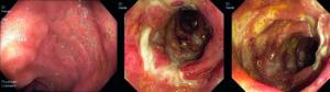 Endoscopische afbeeldingen : A. Normaal terminaal ileum. B en C. Confluerende ulcera in het terminale ileum bij M Crohn