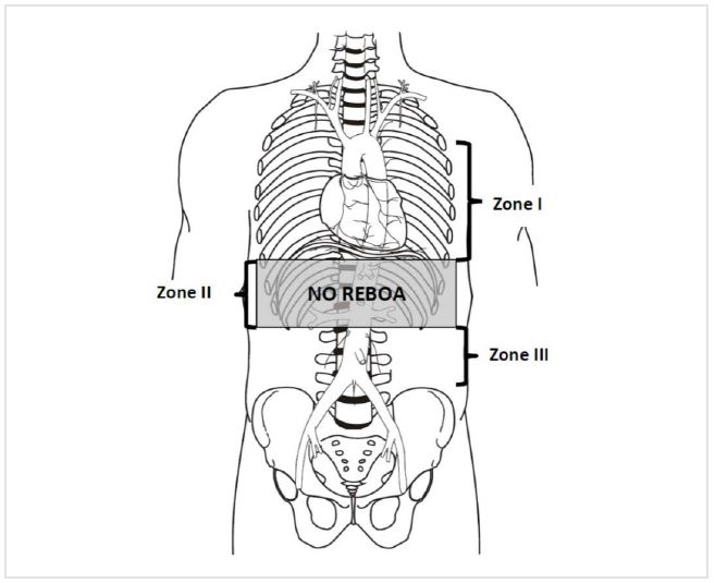 REBOA bij abdominale bloedingen