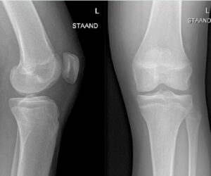 Radiologie En Medische Beeldvorming
