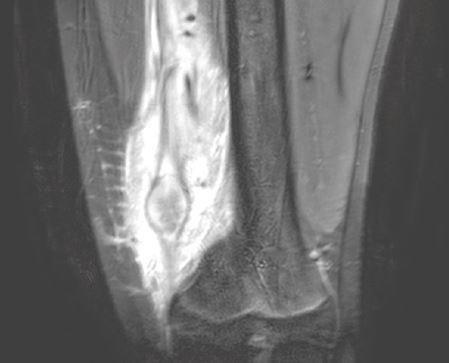MRI linker knie