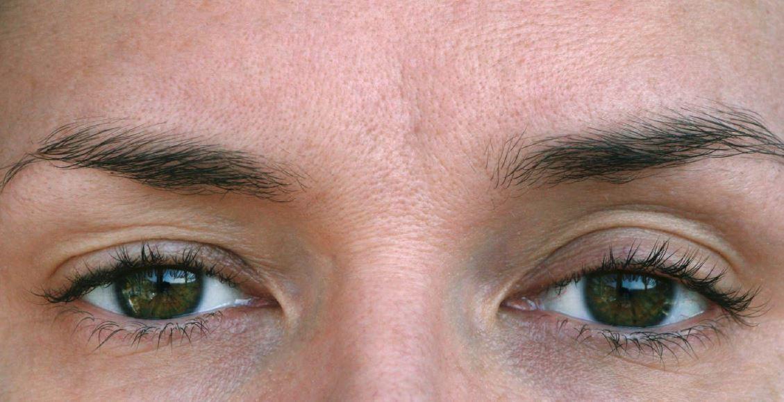 ooglidchirurgie