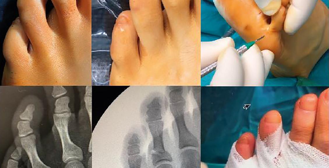voet en enkel chirurgie